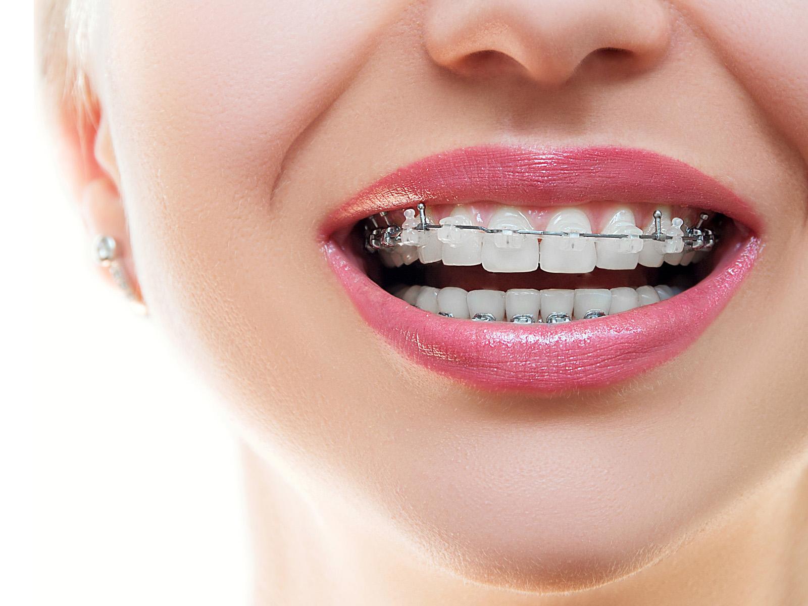 Ortodontia em São Miguel