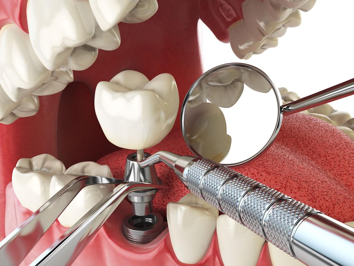 Implante Dental na Zona Leste